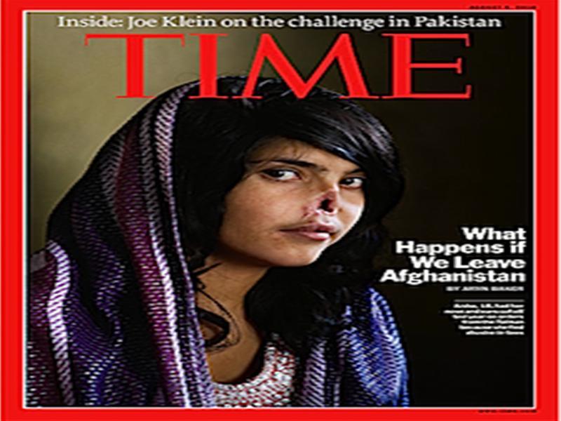 表紙カバー:鼻を削がれたアフガ...